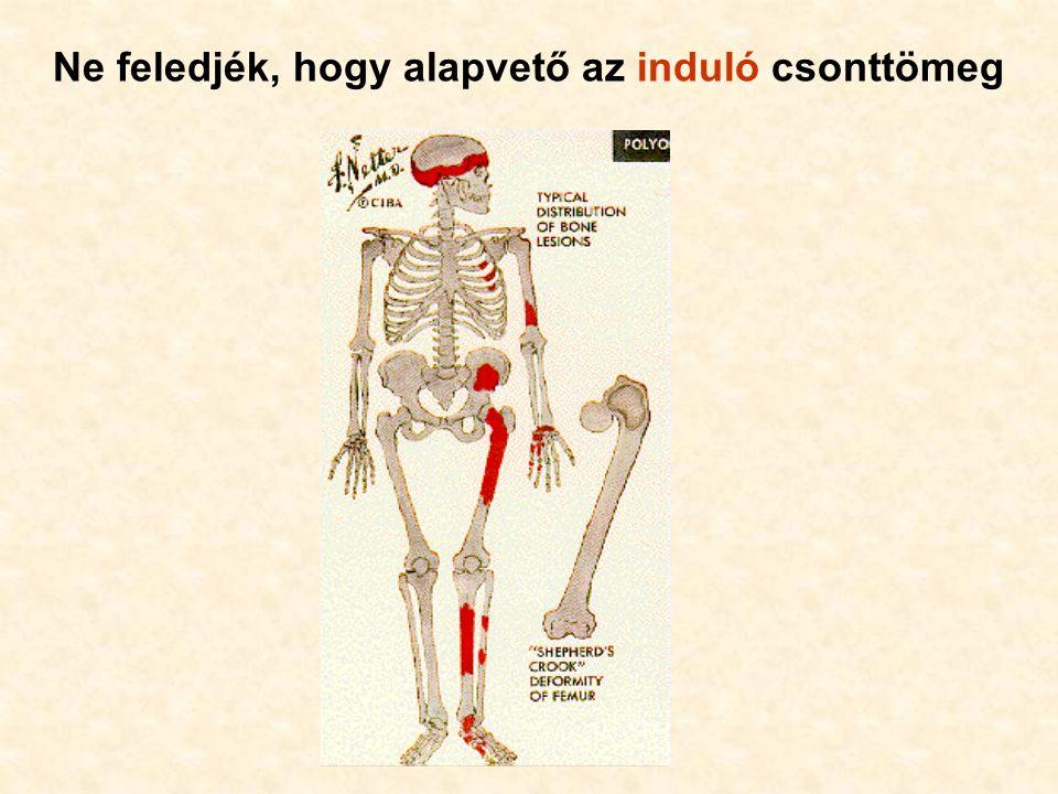 Ne feledjék, hogy alapvető az induló csonttömeg