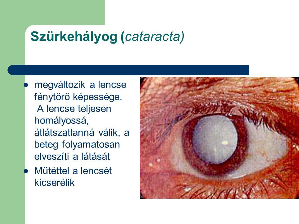 Szürkehályog (cataracta) megváltozik a lencse fénytörő képessége. A lencse teljesen homályossá, átlátszatlanná válik, a beteg folyamatosan elveszíti a