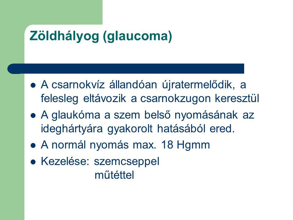 Zöldhályog (glaucoma) A csarnokvíz állandóan újratermelődik, a felesleg eltávozik a csarnokzugon keresztül A glaukóma a szem belső nyomásának az idegh