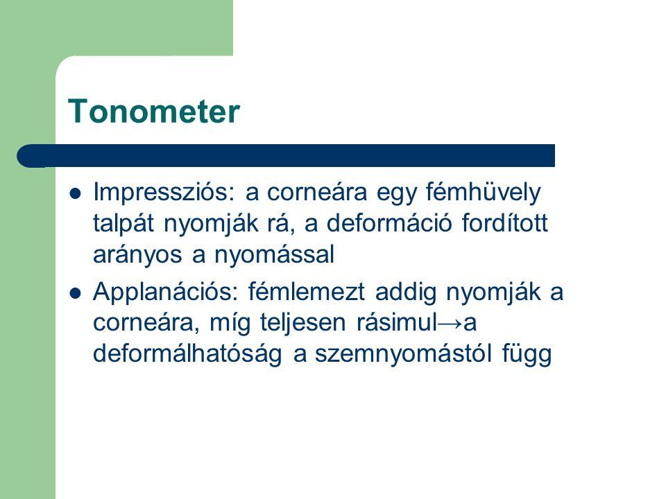 Tonometer Impressziós: a corneára egy fémhüvely talpát nyomják rá, a deformáció fordított arányos a nyomással Applanációs: fémlemezt addig nyomják a c