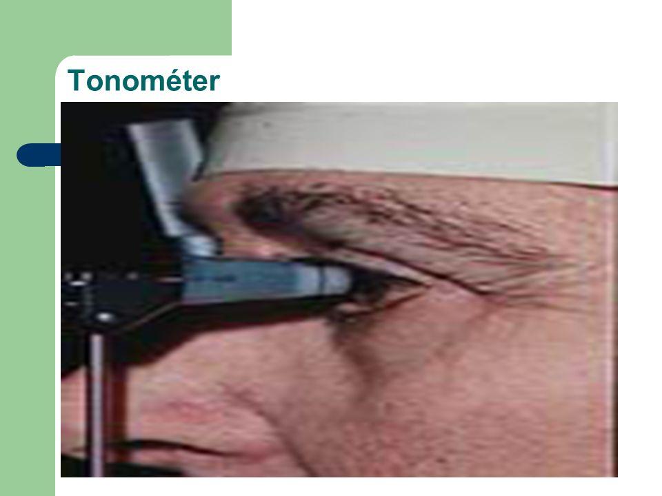 Tonométer