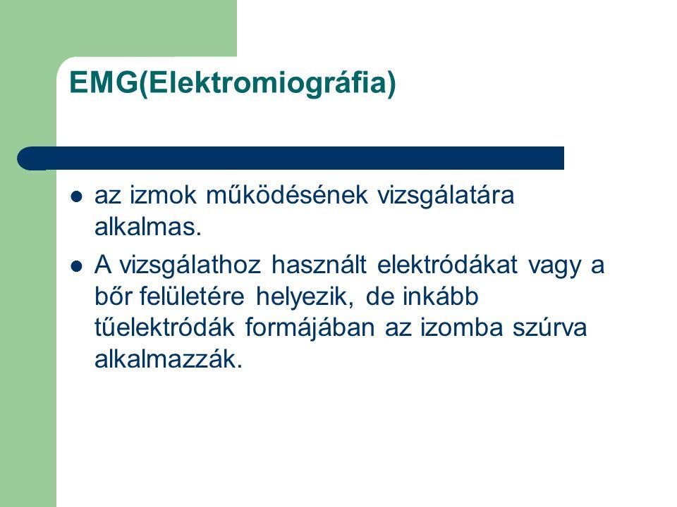 EMG(Elektromiográfia) az izmok működésének vizsgálatára alkalmas. A vizsgálathoz használt elektródákat vagy a bőr felületére helyezik, de inkább tűele