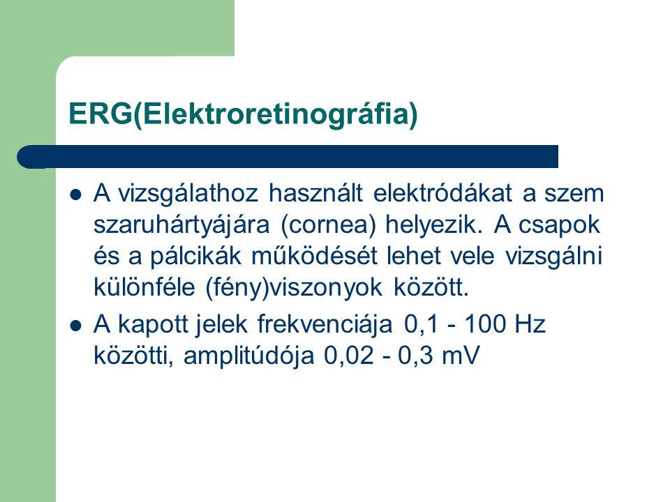 ERG(Elektroretinográfia) A vizsgálathoz használt elektródákat a szem szaruhártyájára (cornea) helyezik. A csapok és a pálcikák működését lehet vele vi