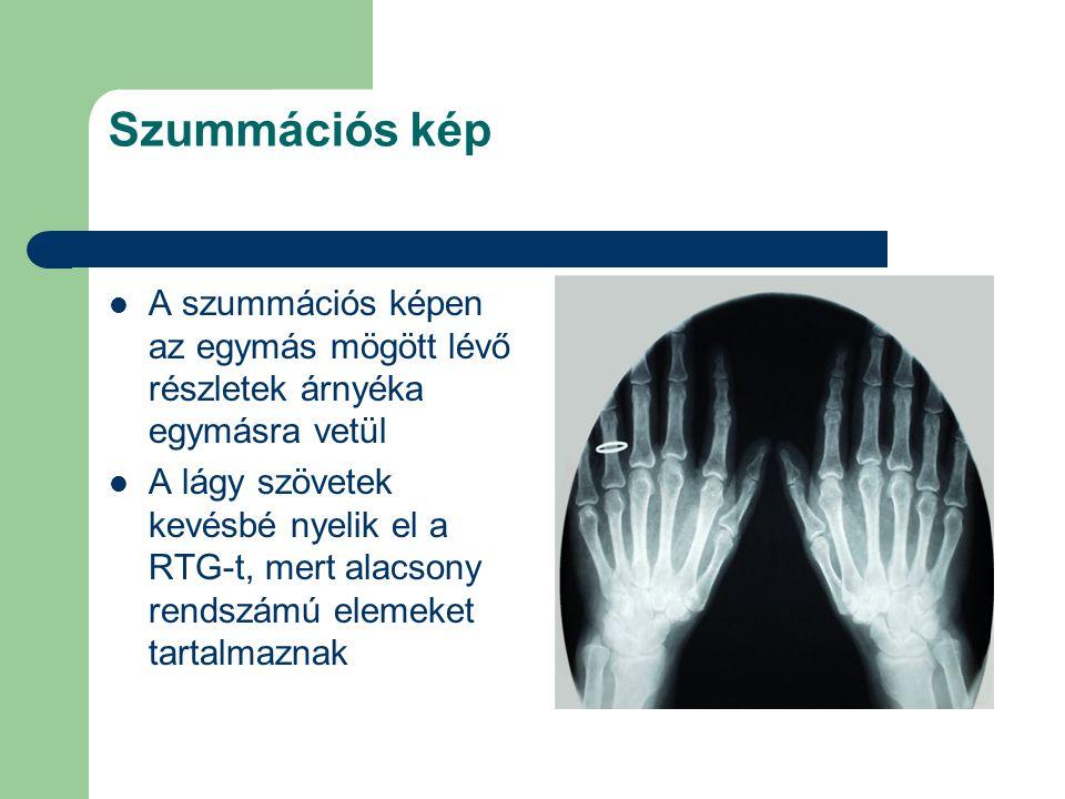 Szummációs kép A szummációs képen az egymás mögött lévő részletek árnyéka egymásra vetül A lágy szövetek kevésbé nyelik el a RTG-t, mert alacsony rend