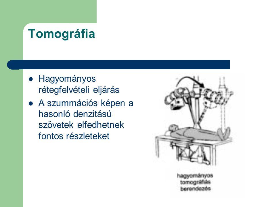 Tomográfia Hagyományos rétegfelvételi eljárás A szummációs képen a hasonló denzitású szövetek elfedhetnek fontos részleteket