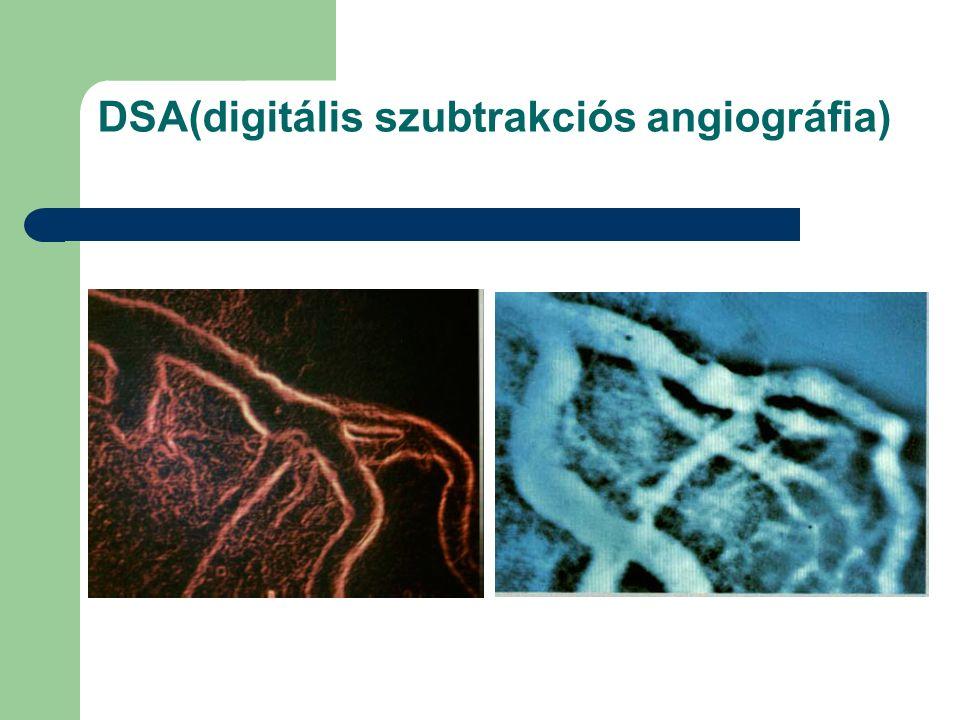 DSA(digitális szubtrakciós angiográfia)