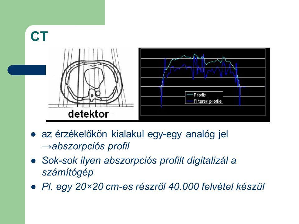 CT az érzékelőkön kialakul egy-egy analóg jel →abszorpciós profil Sok-sok ilyen abszorpciós profilt digitalizál a számítógép Pl. egy 20×20 cm-es részr