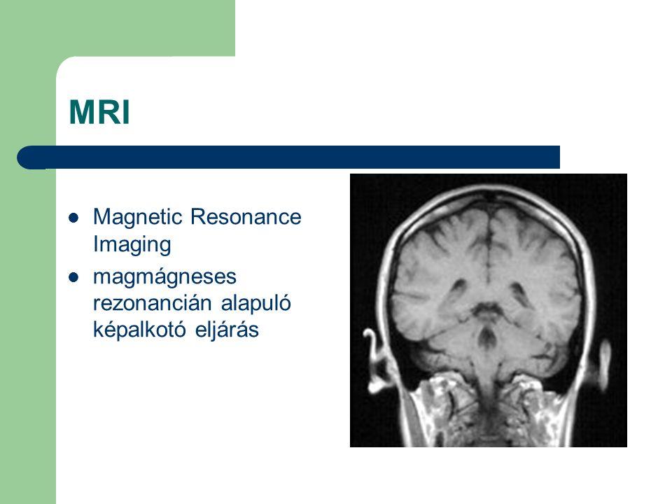 MRI Magnetic Resonance Imaging magmágneses rezonancián alapuló képalkotó eljárás