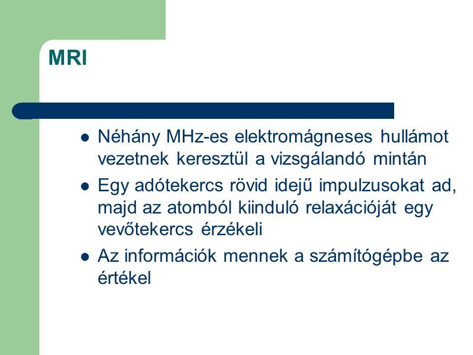 MRI Néhány MHz-es elektromágneses hullámot vezetnek keresztül a vizsgálandó mintán Egy adótekercs rövid idejű impulzusokat ad, majd az atomból kiindul