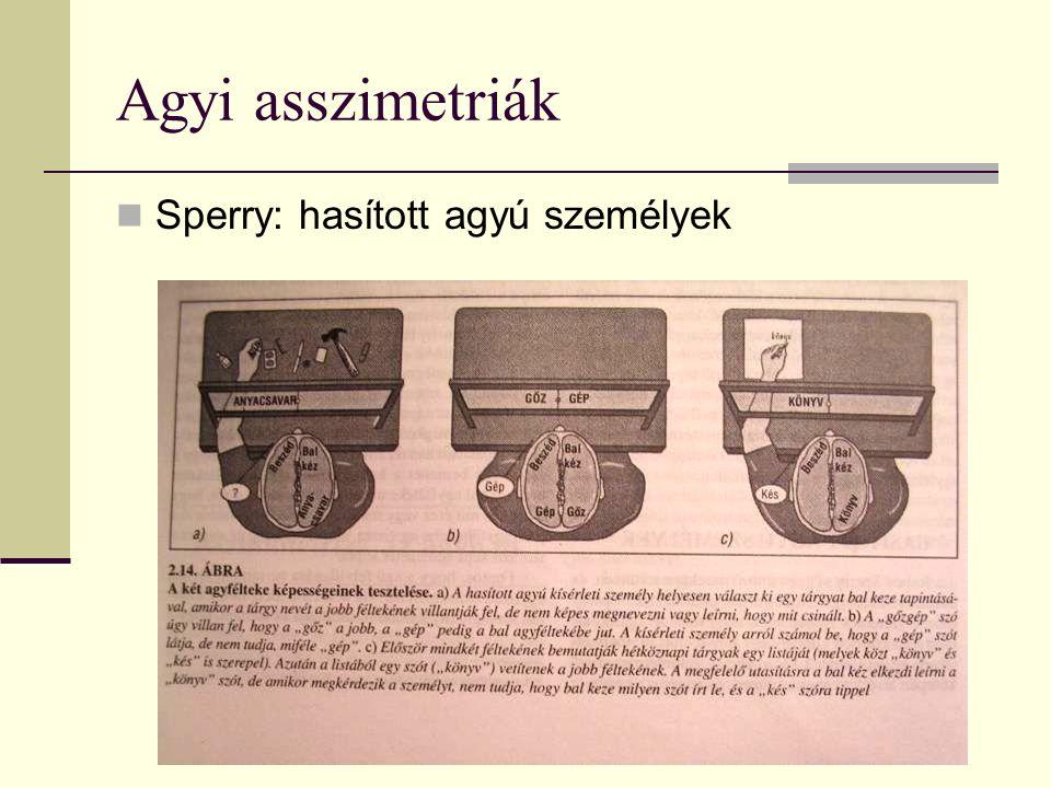 Agyi asszimetriák Sperry: hasított agyú személyek