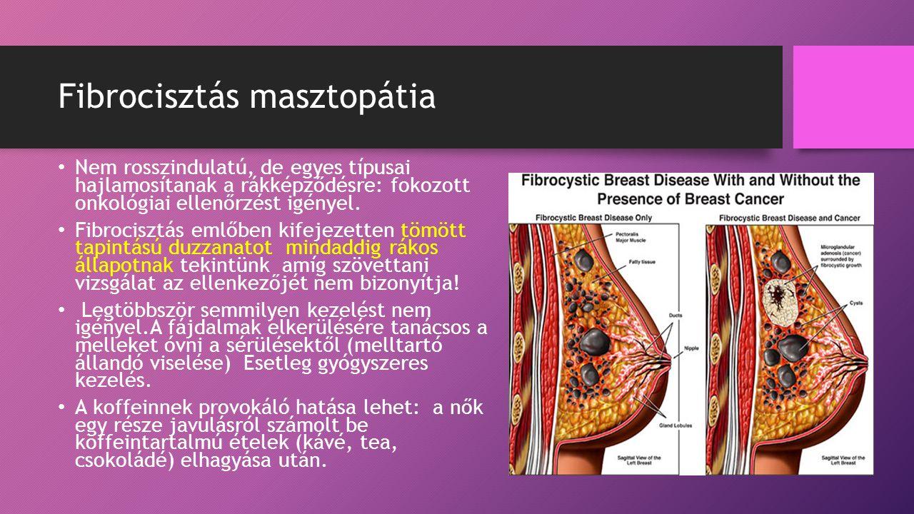 Fibrocisztás masztopátia Nem rosszindulatú, de egyes típusai hajlamosítanak a rákképződésre: fokozott onkológiai ellenőrzést igényel.