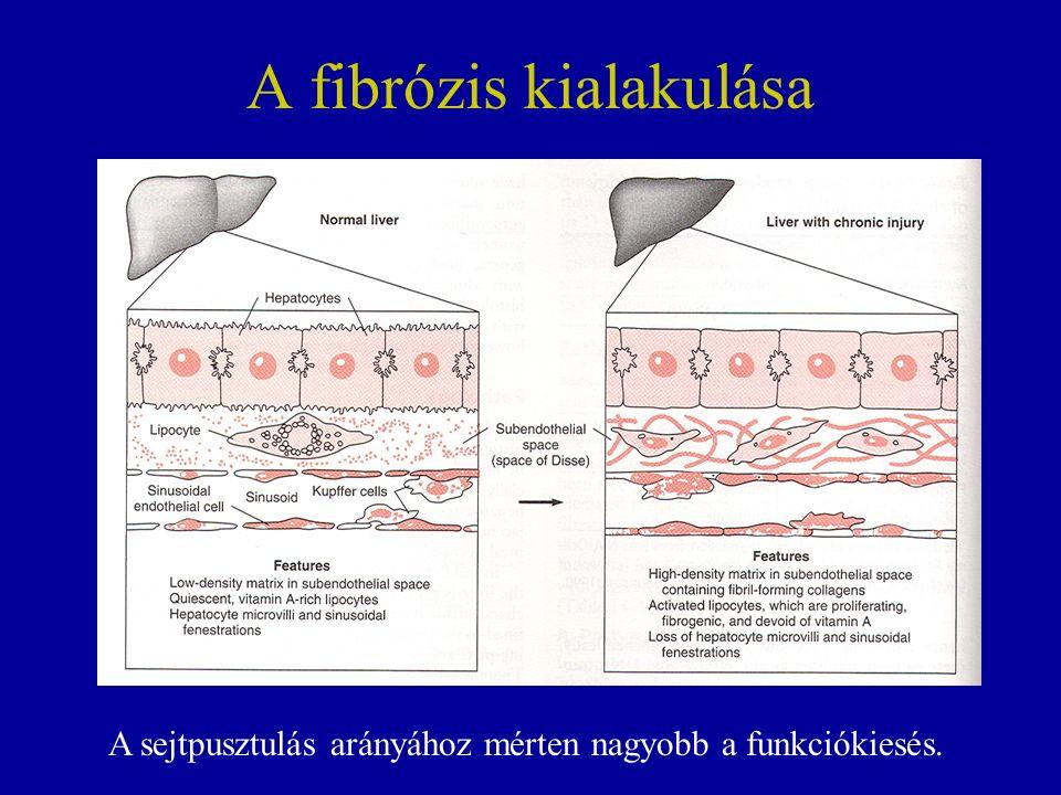 A fibrózis kialakulása A sejtpusztulás arányához mérten nagyobb a funkciókiesés.