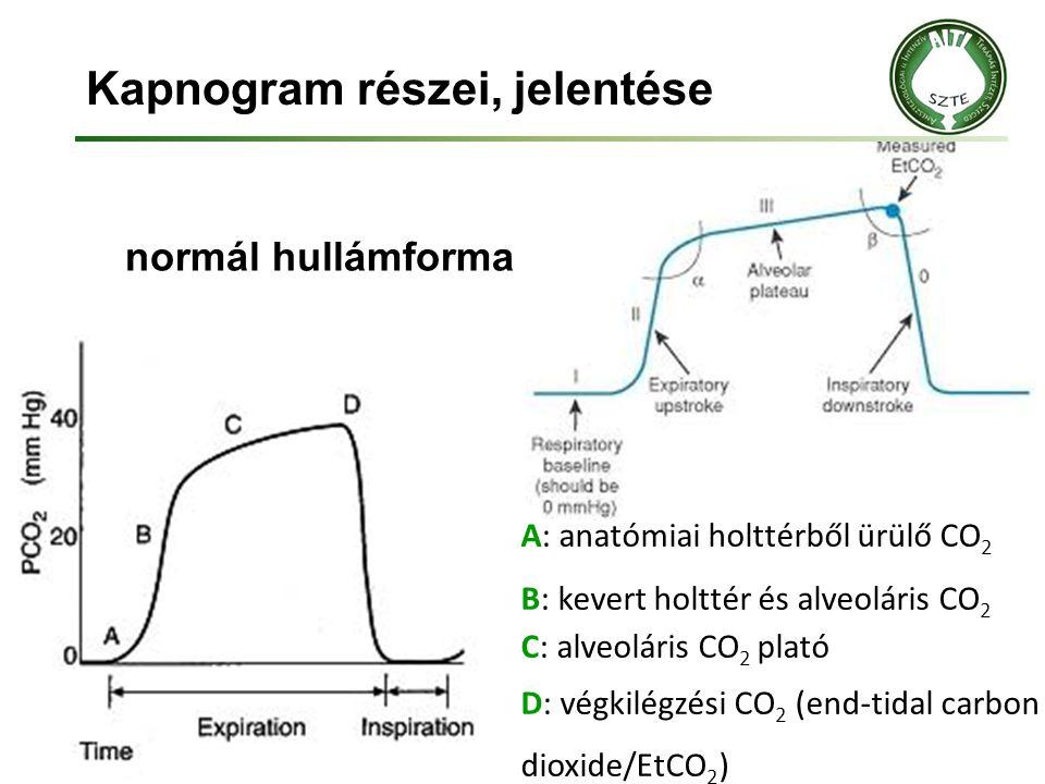 Kapnogram részei, jelentése normál hullámforma A: anatómiai holttérből ürülő CO 2 B: kevert holttér és alveoláris CO 2 C: alveoláris CO 2 plató D: vég