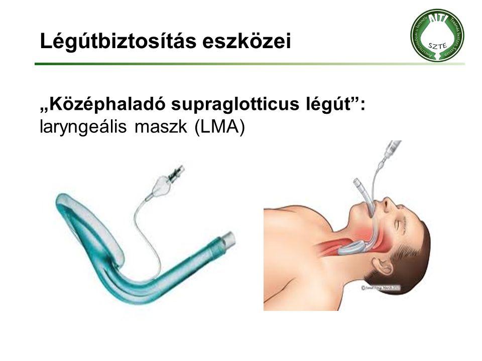 """Légútbiztosítás eszközei """"Középhaladó supraglotticus légút"""": laryngeális maszk (LMA)"""