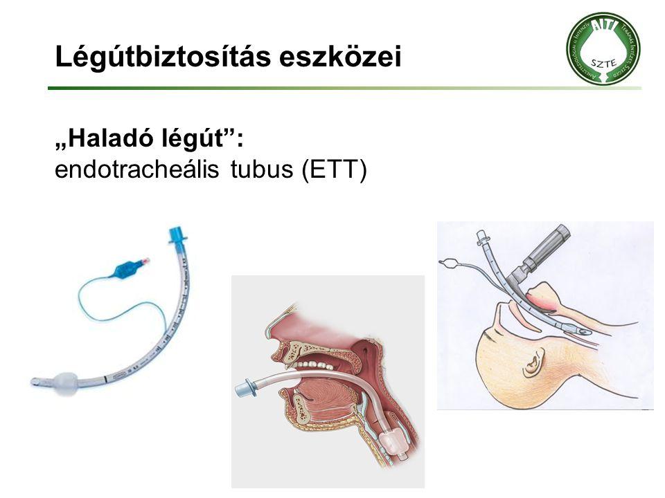 """Légútbiztosítás eszközei """"Haladó légút"""": endotracheális tubus (ETT)"""