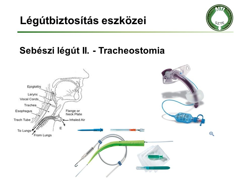Légútbiztosítás eszközei Sebészi légút II. - Tracheostomia
