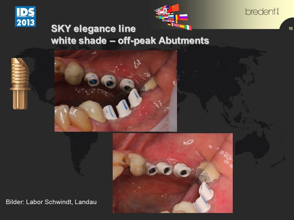 16 SKY elegance line white shade – off-peak Abutments Bilder: Labor Schwindt, Landau