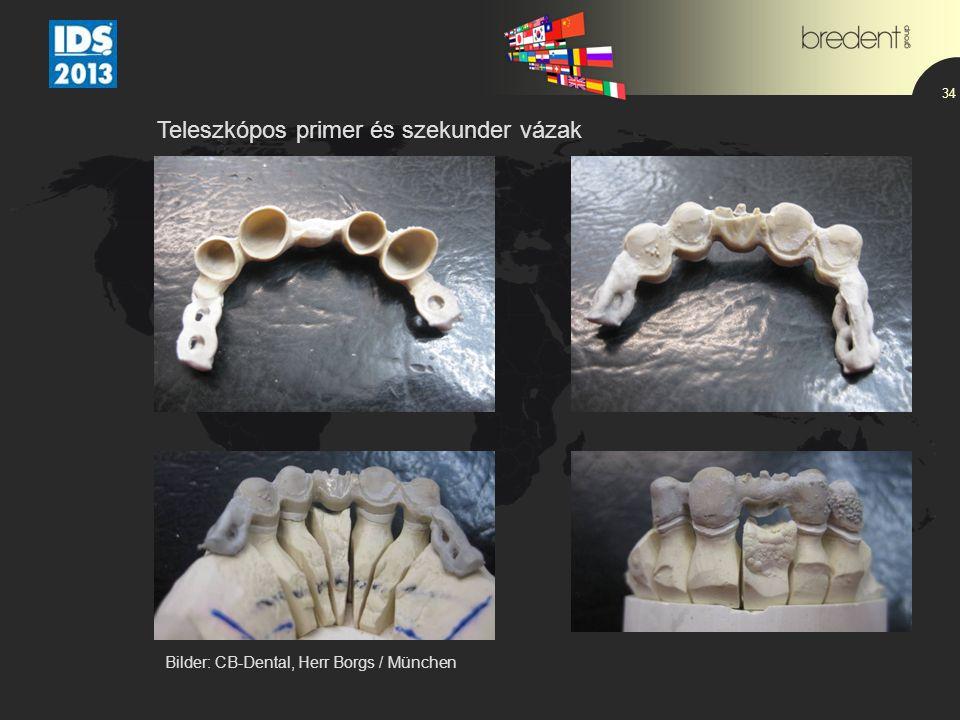 34 Teleszkópos primer és szekunder vázak Bilder: CB-Dental, Herr Borgs / München