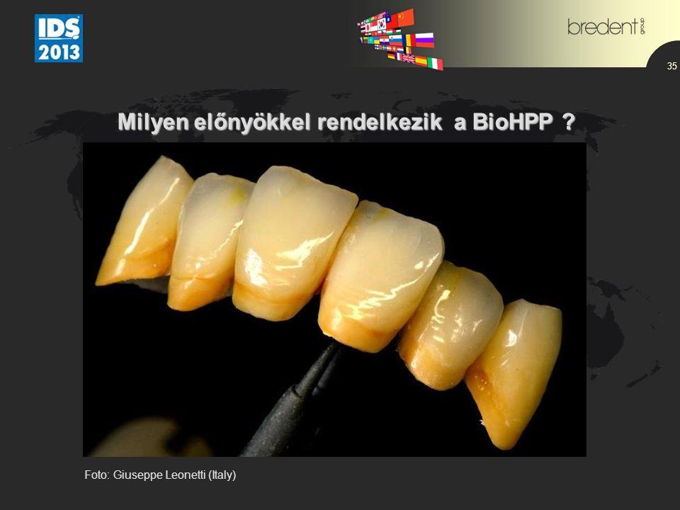 35 Milyen előnyökkel rendelkezik a BioHPP Foto: Giuseppe Leonetti (Italy)