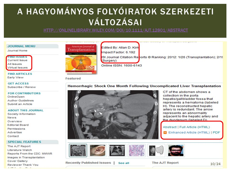 A HAGYOMÁNYOS FOLYÓIRATOK SZERKEZETI VÁLTOZÁSAI HTTP://ONLINELIBRARY.WILEY.COM/DOI/10.1111/AJT.12801/ABSTRACT HTTP://ONLINELIBRARY.WILEY.COM/DOI/10.1111/AJT.12801/ABSTRACT 10/24