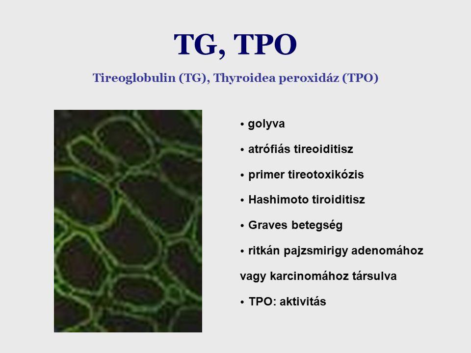 TG, TPO Tireoglobulin (TG), Thyroidea peroxidáz (TPO)  golyva atrófiás tireoiditisz primer tireotoxikózis Hashimoto tiroiditisz Graves betegség ritkán pajzsmirigy adenomához vagy karcinomához társulva TPO: aktivitás