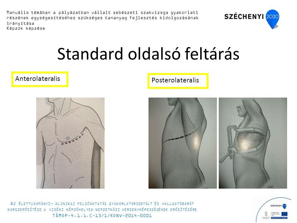 Standard oldalsó feltárás Anterolateralis Posterolateralis Manuális témában a pályázatban vállalt sebészeti szakvizsga gyakorlati részének egységesítéséhez szükséges tananyag fejlesztés kidolgozásának irányítása Képzők képzése A Z ÉLETTUDOMÁNYI - KLINIKAI FELSŐOKTATÁS GYAKORLATORIENTÁLT ÉS HALLGATÓBARÁT KORSZERŰSÍTÉSE A VIDÉKI KÉPZŐHELYEK NEMZETKÖZI VERSENYKÉPESSÉGÉNEK ERŐSÍTÉSÉRE TÁMOP-4.1.1.C-13/1/KONV-2014-0001