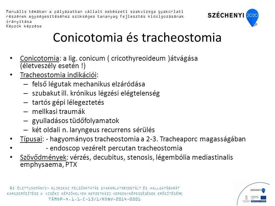 Conicotomia és tracheostomia Conicotomia: a lig.