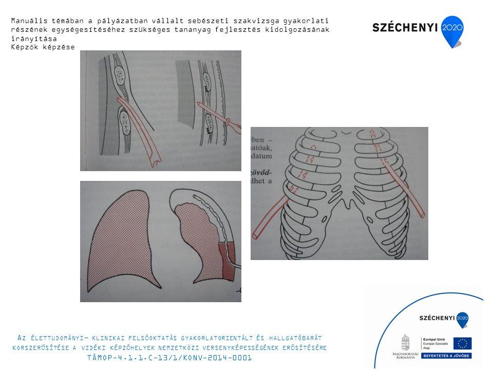 Manuális témában a pályázatban vállalt sebészeti szakvizsga gyakorlati részének egységesítéséhez szükséges tananyag fejlesztés kidolgozásának irányítása Képzők képzése A Z ÉLETTUDOMÁNYI - KLINIKAI FELSŐOKTATÁS GYAKORLATORIENTÁLT ÉS HALLGATÓBARÁT KORSZERŰSÍTÉSE A VIDÉKI KÉPZŐHELYEK NEMZETKÖZI VERSENYKÉPESSÉGÉNEK ERŐSÍTÉSÉRE TÁMOP-4.1.1.C-13/1/KONV-2014-0001