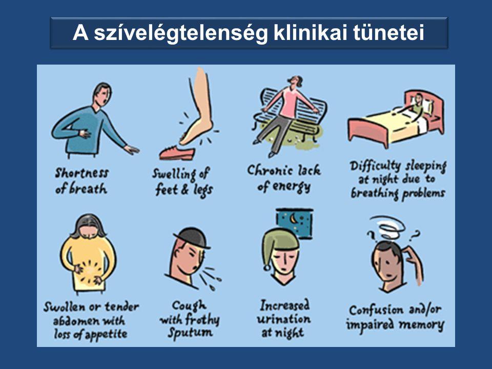 A szívelégtelenség klinikai tünetei