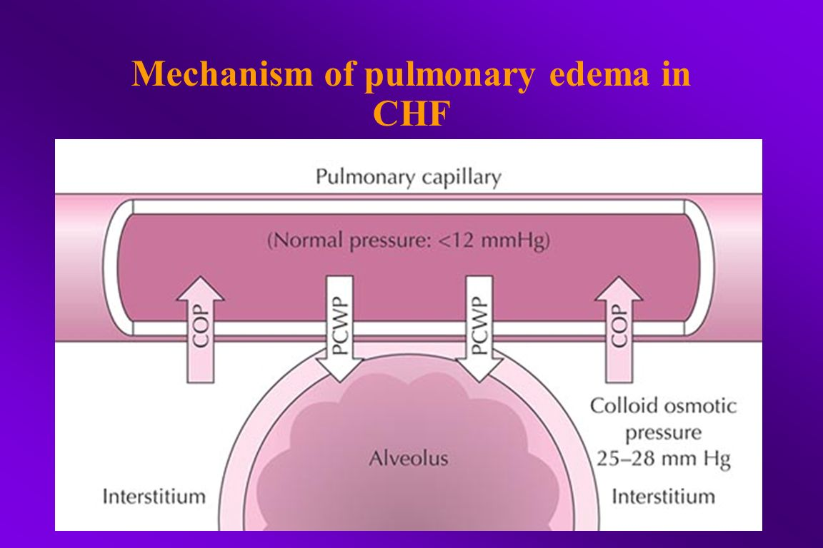 Mechanism of pulmonary edema in CHF