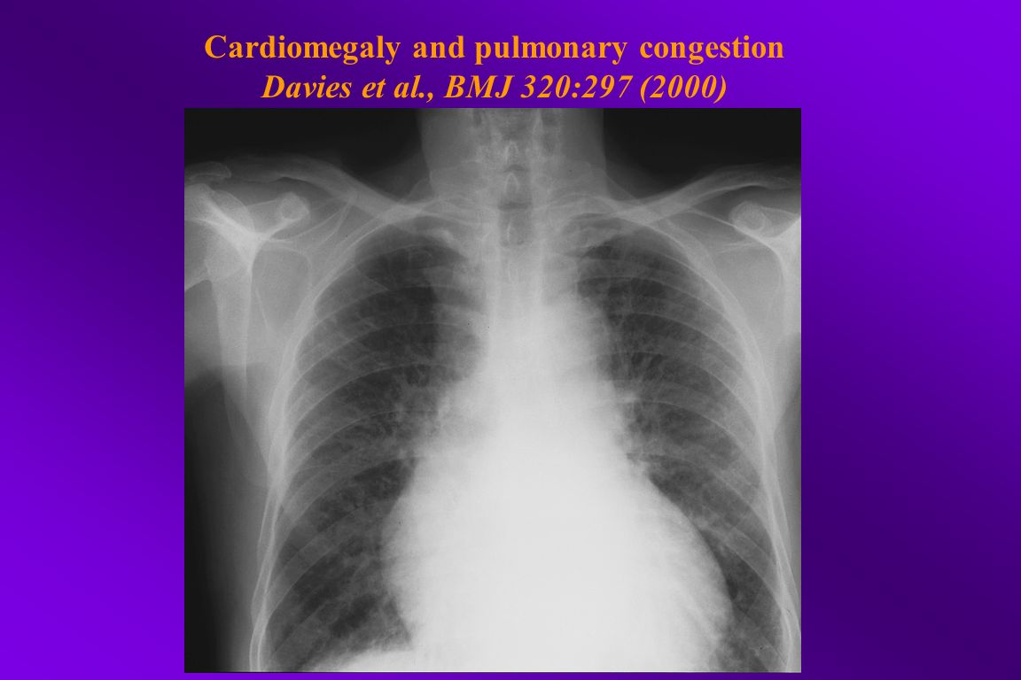 Cardiomegaly and pulmonary congestion Davies et al., BMJ 320:297 (2000)