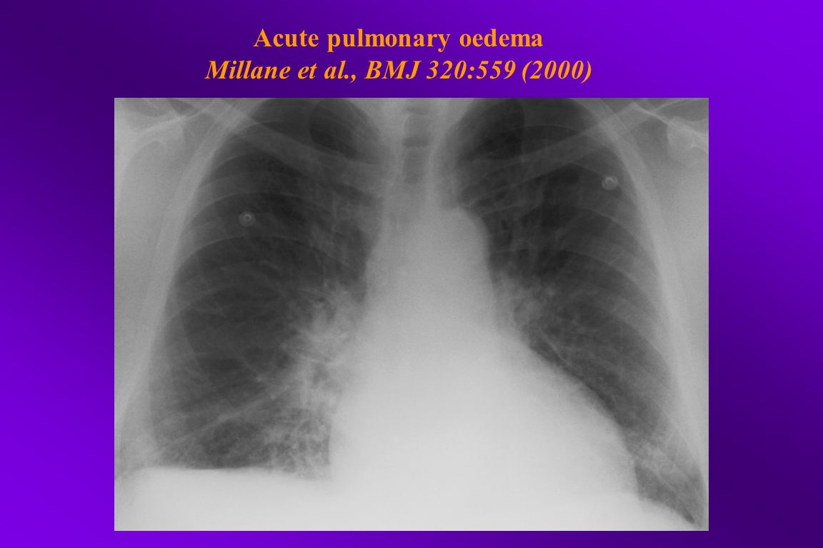 Acute pulmonary oedema Millane et al., BMJ 320:559 (2000)