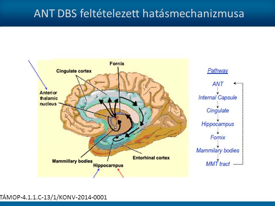 ANT DBS feltételezett hatásmechanizmusa TÁMOP-4.1.1.C-13/1/KONV-2014-0001