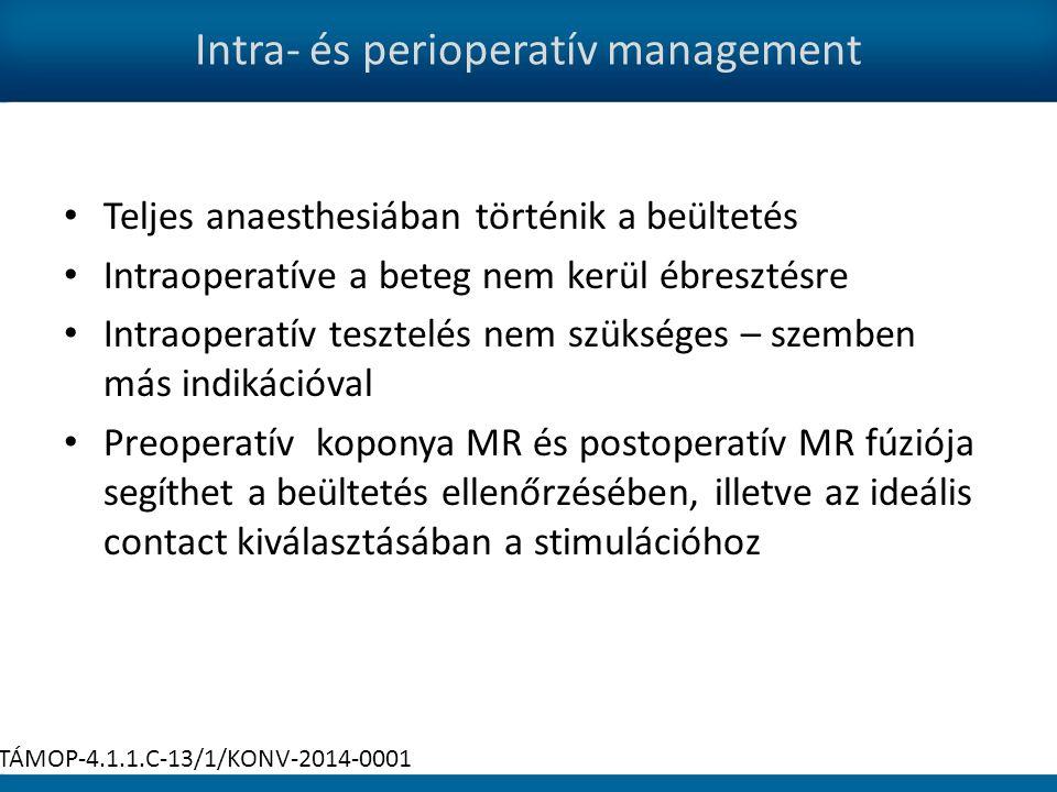 Intra- és perioperatív management Teljes anaesthesiában történik a beültetés Intraoperatíve a beteg nem kerül ébresztésre Intraoperatív tesztelés nem szükséges – szemben más indikációval Preoperatív koponya MR és postoperatív MR fúziója segíthet a beültetés ellenőrzésében, illetve az ideális contact kiválasztásában a stimulációhoz TÁMOP-4.1.1.C-13/1/KONV-2014-0001
