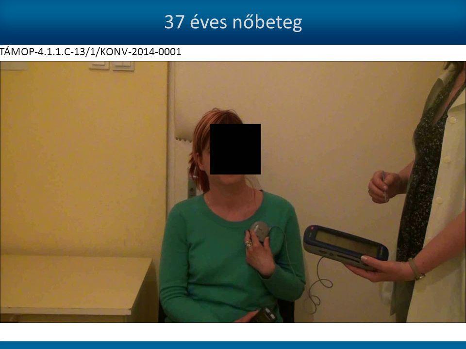 37 éves nőbeteg TÁMOP-4.1.1.C-13/1/KONV-2014-0001