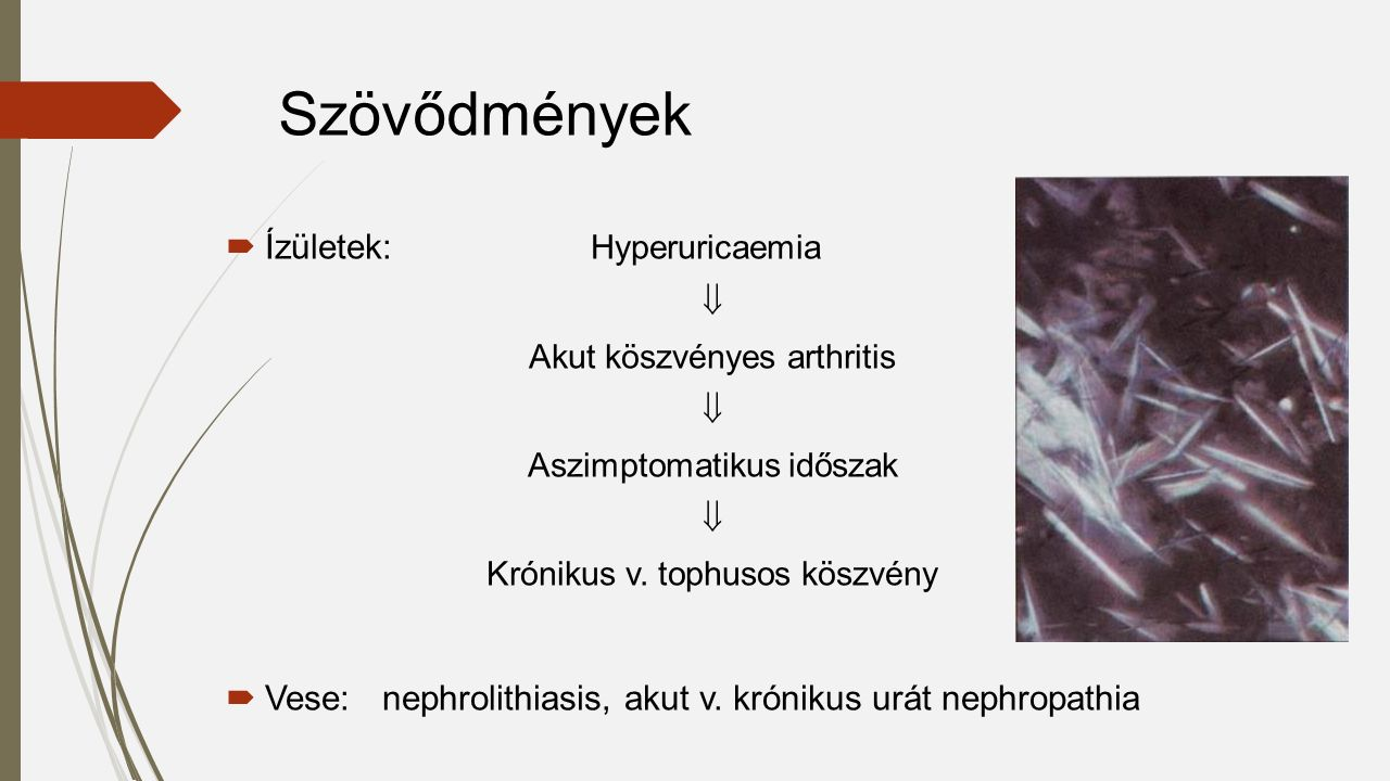  Ízületek: Hyperuricaemia  Akut köszvényes arthritis  Aszimptomatikus időszak  Krónikus v. tophusos köszvény  Vese: nephrolithiasis, akut v. krón