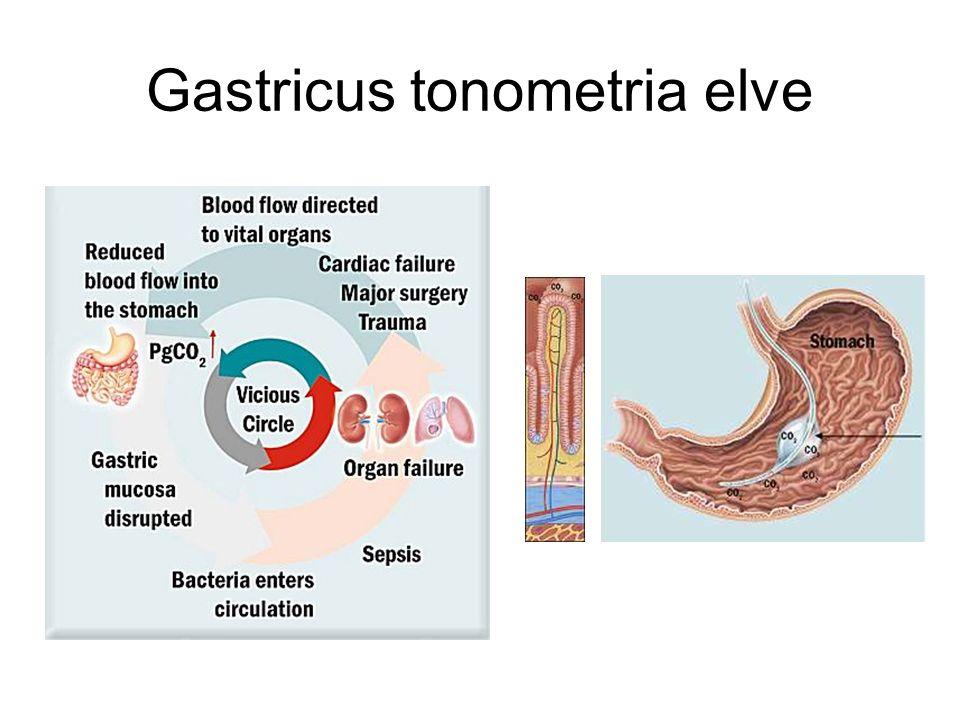 Gastricus tonometria elve