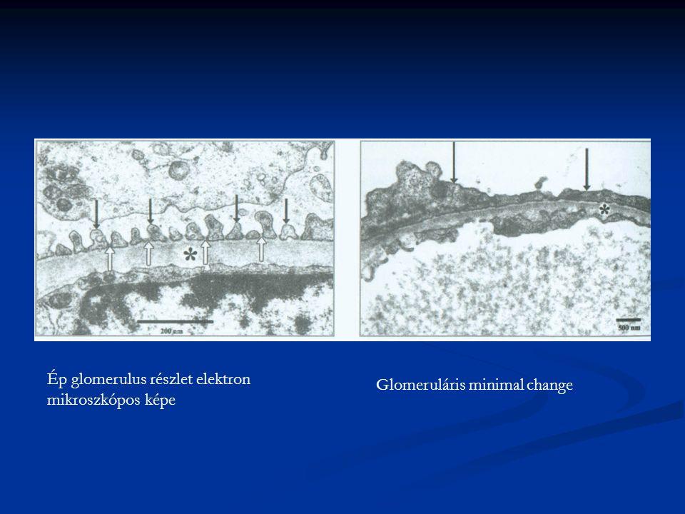 Ép glomerulus részlet elektron mikroszkópos képe Glomeruláris minimal change