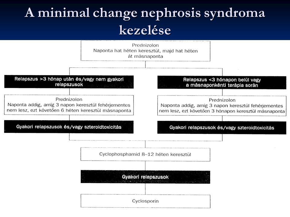 A minimal change nephrosis syndroma kezelése