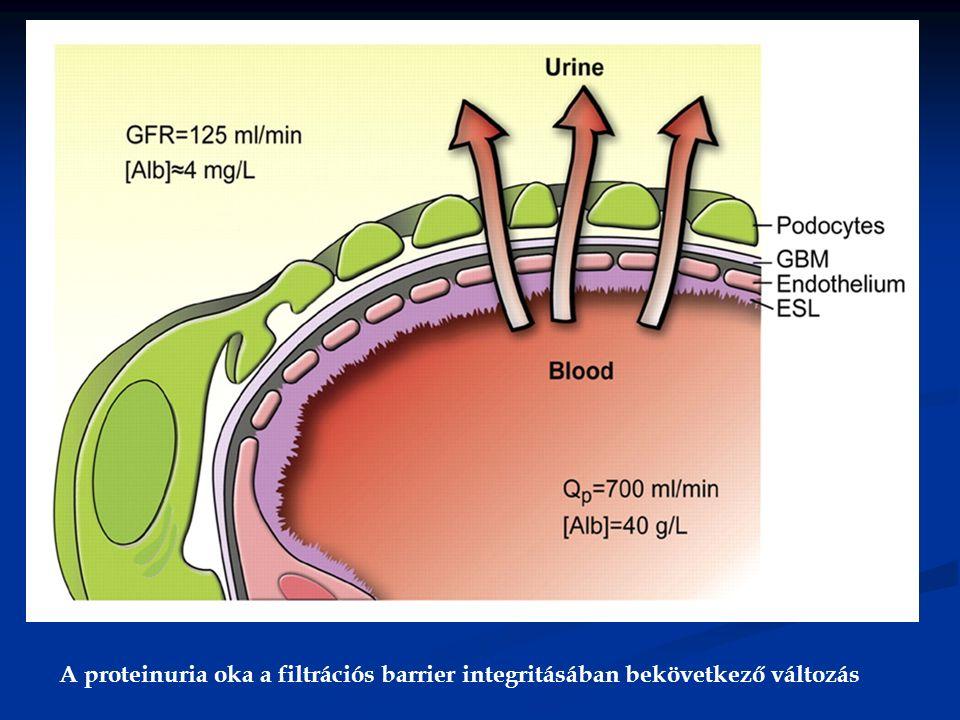 A proteinuria oka a filtrációs barrier integritásában bekövetkező változás