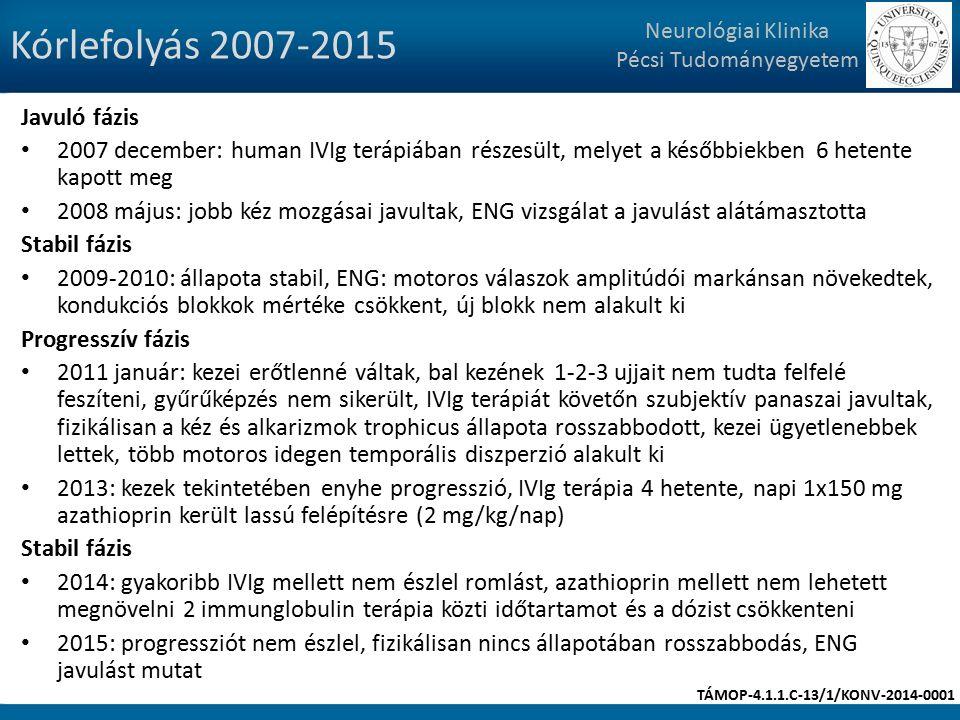 Kórlefolyás 2007-2015 Javuló fázis 2007 december: human IVIg terápiában részesült, melyet a későbbiekben 6 hetente kapott meg 2008 május: jobb kéz mozgásai javultak, ENG vizsgálat a javulást alátámasztotta Stabil fázis 2009-2010: állapota stabil, ENG: motoros válaszok amplitúdói markánsan növekedtek, kondukciós blokkok mértéke csökkent, új blokk nem alakult ki Progresszív fázis 2011 január: kezei erőtlenné váltak, bal kezének 1-2-3 ujjait nem tudta felfelé feszíteni, gyűrűképzés nem sikerült, IVIg terápiát követőn szubjektív panaszai javultak, fizikálisan a kéz és alkarizmok trophicus állapota rosszabbodott, kezei ügyetlenebbek lettek, több motoros idegen temporális diszperzió alakult ki 2013: kezek tekintetében enyhe progresszió, IVIg terápia 4 hetente, napi 1x150 mg azathioprin került lassú felépítésre (2 mg/kg/nap) Stabil fázis 2014: gyakoribb IVIg mellett nem észlel romlást, azathioprin mellett nem lehetett megnövelni 2 immunglobulin terápia közti időtartamot és a dózist csökkenteni 2015: progressziót nem észlel, fizikálisan nincs állapotában rosszabbodás, ENG javulást mutat Neurológiai Klinika Pécsi Tudományegyetem TÁMOP-4.1.1.C-13/1/KONV-2014-0001