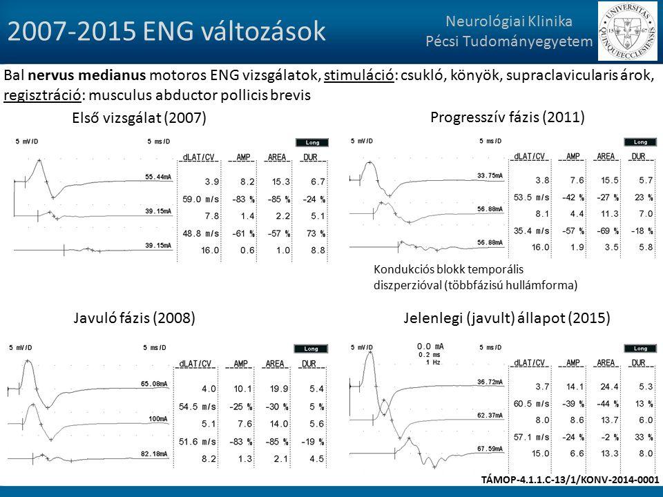 2007-2015 ENG változások Neurológiai Klinika Pécsi Tudományegyetem Bal nervus medianus motoros ENG vizsgálatok, stimuláció: csukló, könyök, supraclavicularis árok, regisztráció: musculus abductor pollicis brevis Első vizsgálat (2007) Javuló fázis (2008) Progresszív fázis (2011) Jelenlegi (javult) állapot (2015) Kondukciós blokk temporális diszperzióval (többfázisú hullámforma) TÁMOP-4.1.1.C-13/1/KONV-2014-0001