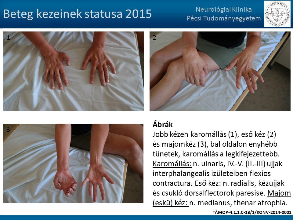 Beteg kezeinek statusa 2015 Neurológiai Klinika Pécsi Tudományegyetem Ábrák Jobb kézen karomállás (1), eső kéz (2) és majomkéz (3), bal oldalon enyhébb tünetek, karomállás a legkifejezettebb.