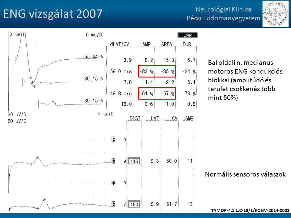 ENG vizsgálat 2007 Neurológiai Klinika Pécsi Tudományegyetem Bal oldali n.