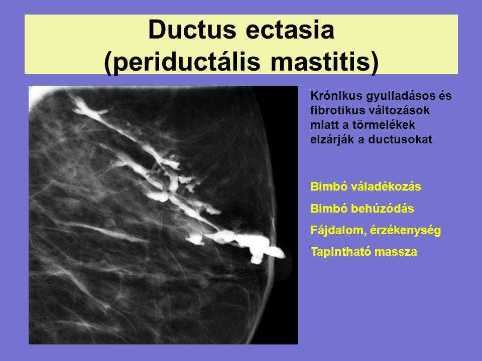 Ductus ectasia (periductális mastitis) Krónikus gyulladásos és fibrotikus változások miatt a törmelékek elzárják a ductusokat Bimbó váladékozás Bimbó behúzódás Fájdalom, érzékenység Tapintható massza