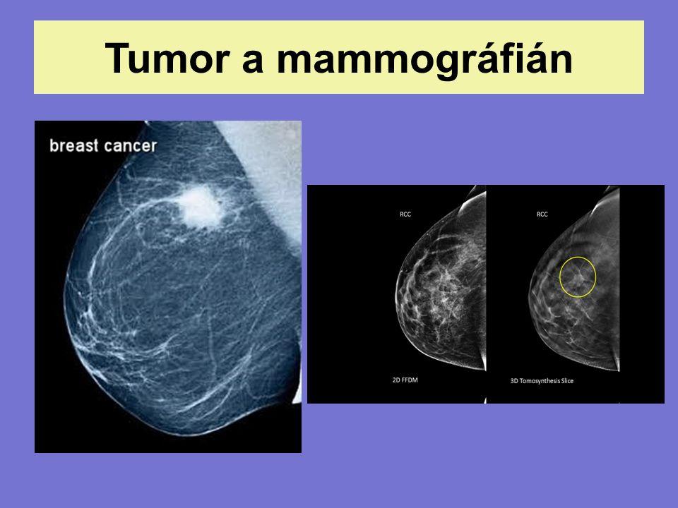 Tumor a mammográfián
