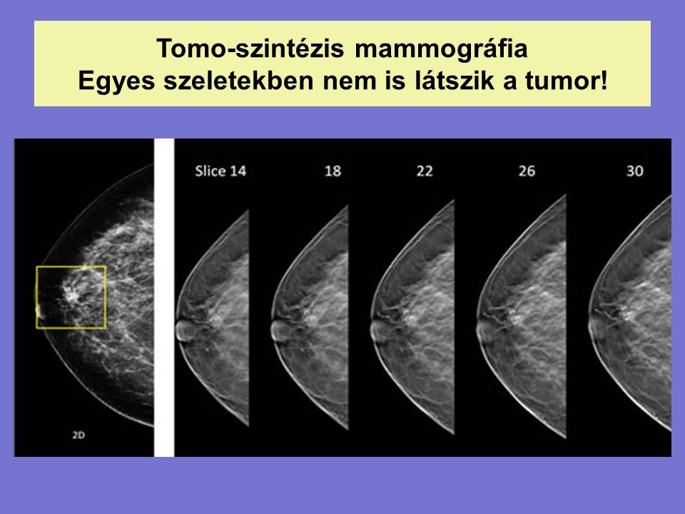 Tomo-szintézis mammográfia Egyes szeletekben nem is látszik a tumor!