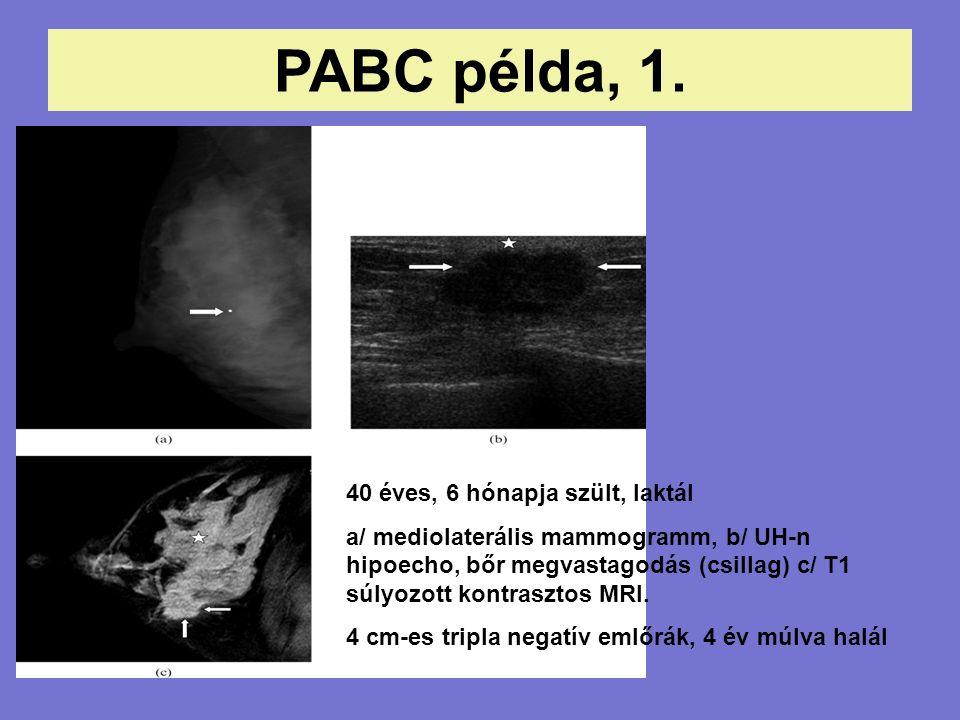 PABC példa, 1.