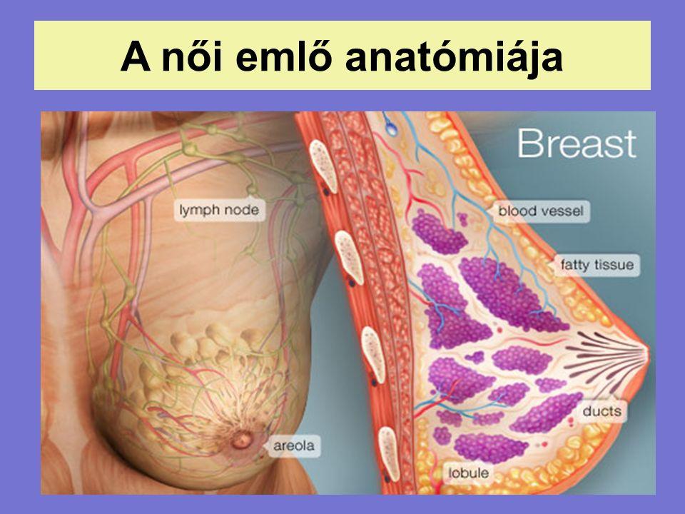 """Tályog (abscessus) Műtét után, a sebészeti kötés (""""surgical pack ) alatt látható tályog"""