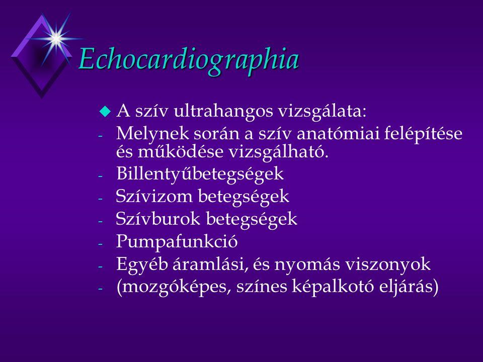 Echocardiographia u A szív ultrahangos vizsgálata: - Melynek során a szív anatómiai felépítése és működése vizsgálható. - Billentyűbetegségek - Szíviz